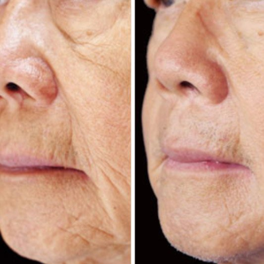 Microneedling with PRP before and after