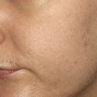microneedling after